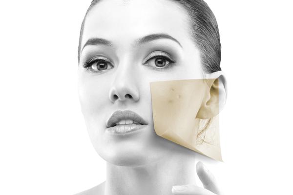 Tratamientos faciales - Acné y piel grasa